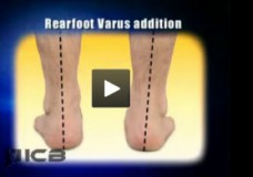 Rearfoot Varus – Orthotic Additions